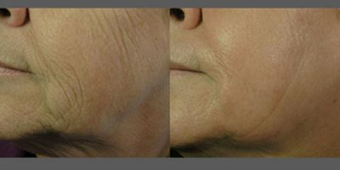 Eliminate Wrinkles With BOTOX® Treatments From Kailua's Best Medical Spa, Koolaupoko, Hawaii
