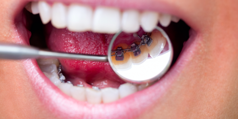 Not All About Looks: Anchorage Dentists Explain the Importance of Braces, Anchorage, Alaska