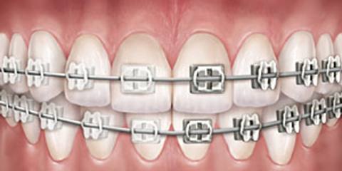 4 Oral Hygiene Practices People With Braces Should Follow, ,