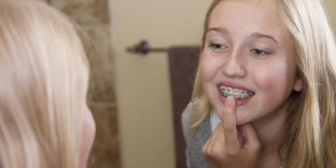 3 Ways to Get Your Child Excited About Braces, Ewa, Hawaii