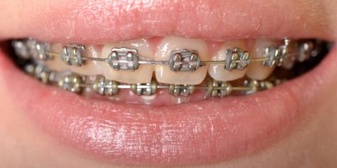 How to Decide Between Invisalign® & Traditional Braces?, Jacksonville, Arkansas