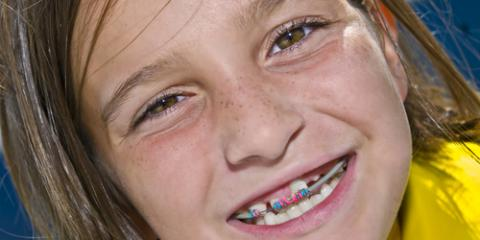 How Old Does My Child Have to Be for Braces? , La Crosse, Wisconsin