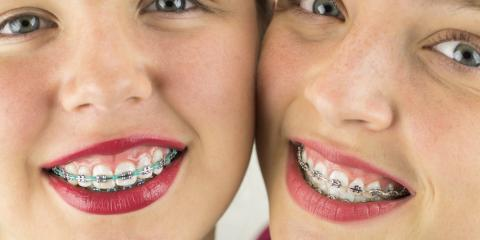 What Age Should My Child Get Braces?, Fairfield, Ohio