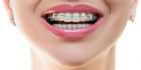 What Are the Different Kinds of Braces?, Ewa, Hawaii