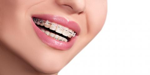 When's the Best Time for Braces? Northern Alabama's Top Dentist Explains, Scottsboro, Alabama