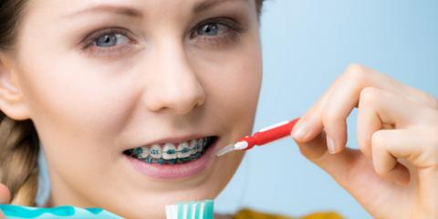 How to Have Great Oral Hygiene With Braces, Perry, Georgia