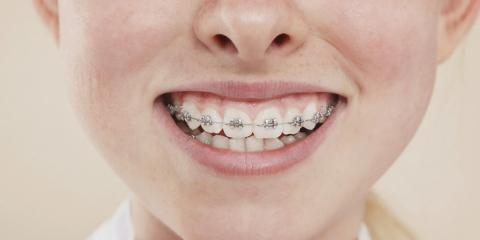 3 Tips for Maintaining Oral Health After Getting Braces, Potomac, Maryland