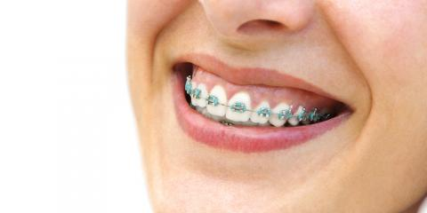 4 Types of Food to Avoid if You Wear Braces , Potomac, Maryland