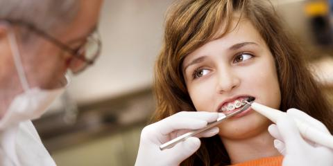5 Foods to Avoid if You Have Braces, Sacramento, California