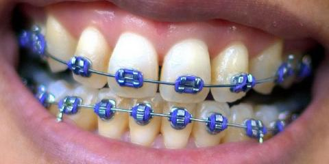 Orthodontists Share Foods to Avoid When Wearing Braces, Anderson, Ohio