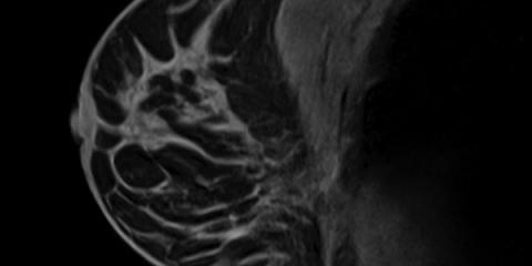 Breast MRI: A Radiologist's Newest Tool in the Detection of Breast Cancer, Monroe, New York