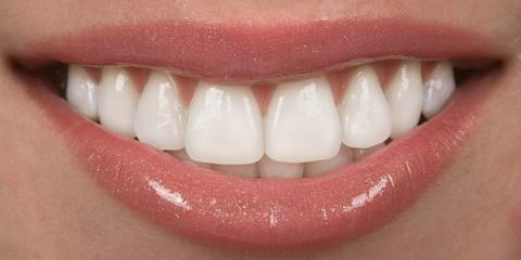 How Getting Your Teeth Whitened by Anchorage's Best Cosmetic Dentist Will Boost Your Confidence, Anchorage, Alaska