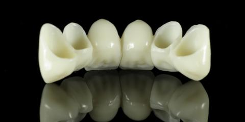 Everything You Need to Know About Dental Crowns & Bridges, Concord, North Carolina