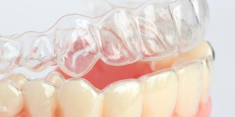 Clarifying Invisalign With Kentucky's Best Dentist, Mark Stephens DMD , Richmond, Kentucky