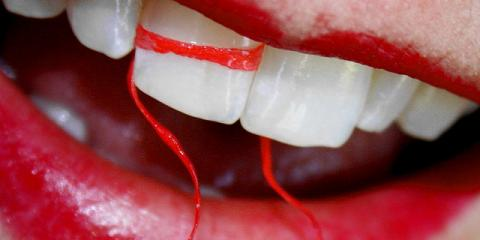Don't Believe the Hype: Why You Should Definitely Still Be Flossing, Irondequoit, New York
