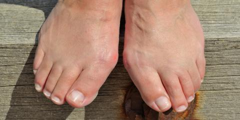 Bunion Prevention & When It's Time to See a Podiatrist, Elko, Nevada