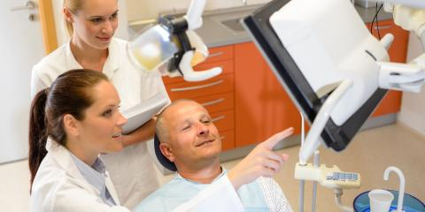 FAQ About Sinus Augmentation for Dental Implants, Burlington, Washington