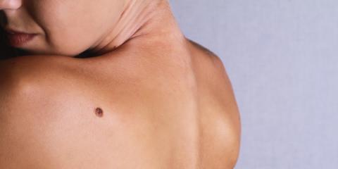 How to Check for Cancerous Moles, Asheboro, North Carolina
