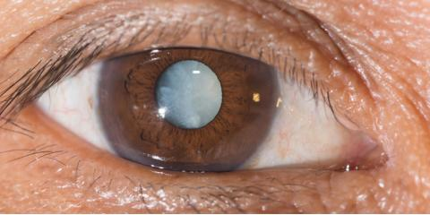 Types of Cataracts: 5 Causes Other Than Age   , Greece, New York
