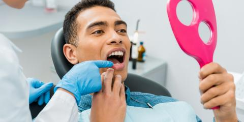 A Guide to Getting Dental Crowns, Inverness, Colorado