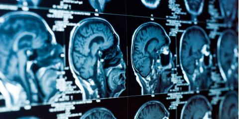 5 Reliable Symptoms of Traumatic Brain Injury in Neuropsychiatry, Chapel Hill, North Carolina