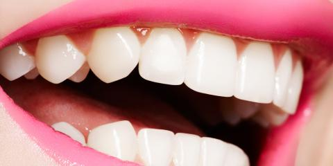 What Procedures Does a Cosmetic Dentist Perform? , Hamilton, Ohio