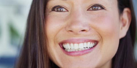 Your Simple Guide to Repairing a Chipped Tooth, Superior, Wisconsin