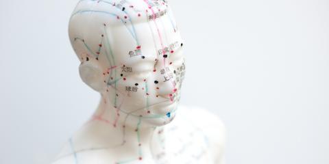 Chiropractors & Acupuncture: A Combination for Success, York, Nebraska