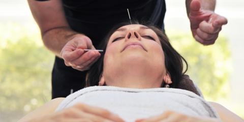 3 Benefits of Acupuncture for Stress in the Workplace, Forest Park, Ohio