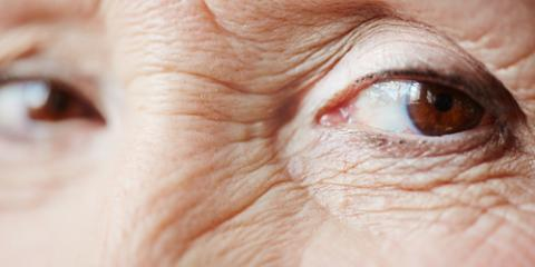 What Eye Care Specialists Want You to Know About Eyelift Surgery, Symmes, Ohio