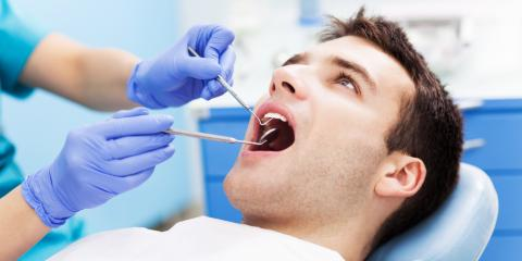 FAQs About Dental Crowns, Springfield, Ohio
