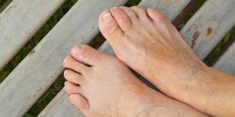 Hammertoes: What You Need to Know to Cope, Franklin, Ohio