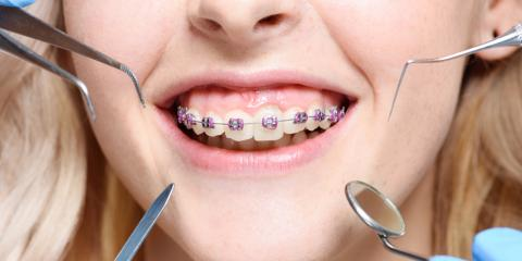 A Dentist Explains How to Care for Your Braces, Miami, Ohio