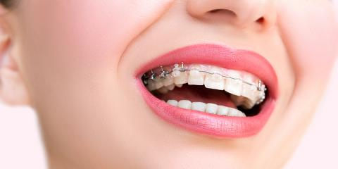 3 Major Benefits of Getting Clear Braces, La Crosse, Wisconsin