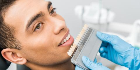 4 FAQ About Teeth Whitening, Clearwater, Florida