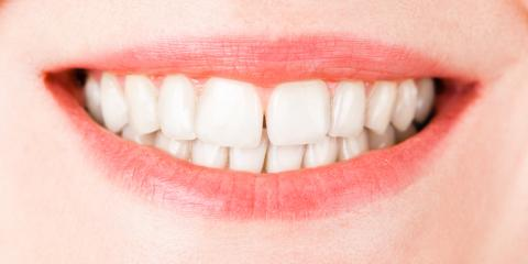 5 Ways Veneers Will Transform Your Smile, Cold Spring, Kentucky