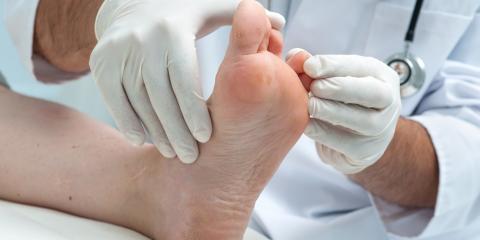 Top Connecticut Podiatrists Explain Common Causes of Foot Fungus , Norwich, Connecticut
