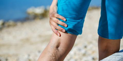 3 Tips for Soothing Painful Varicose Veins, Hartford, Connecticut
