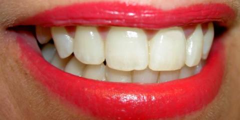 A Comprehensive Guide to Dental Implants, Anchorage, Alaska