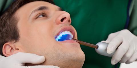 3 Myths About Cosmetic Dentistry You Should Know, Colorado Springs, Colorado