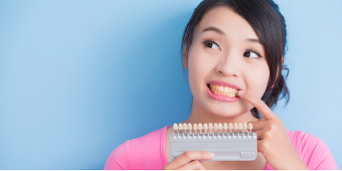 DIY vs. Professional Cosmetic Dentistry Teeth Whitening: What You Need to Know, Pagosa Springs, Colorado