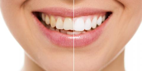 4 Cosmetic Dentistry Options to Brighten Your Smile, Perry, Georgia