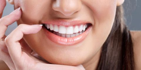 3 Reasons to Choose Professional Teeth Whitening, Scottsboro, Alabama