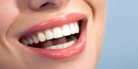 3 Cosmetic Dentistry Procedures to Improve Your Smile, Milford, Pennsylvania