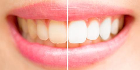 What to Know About Kör® Teeth Whitening , Warrenton, Missouri
