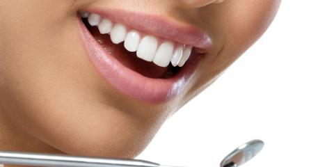 The 3 Most Popular Types of Cosmetic Dentistry, Columbia, Missouri