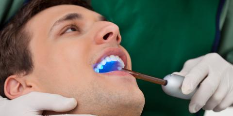 4 Benefits of Seeing a Cosmetic Dentist, St. Croix Falls, Wisconsin