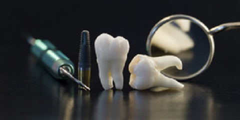 Getting to The Root of The Problem: Are Dental Implants The Right Fit For You?, Anchorage, Alaska