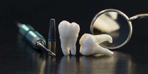 Preventative Dental Care: The Key to a Healthy Smile, Anchorage, Alaska