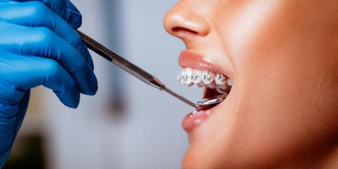 How to Know if You Need Braces, Covington, Kentucky